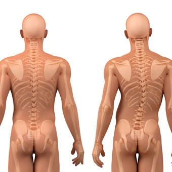 Scoliose déviation vertébrale DEVENIR COACH SPORTIF FORMATION COACHING DIPLOME BPJEPS AGFF