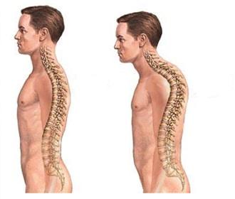 Cyphose et musculation : comment vous adapter ?